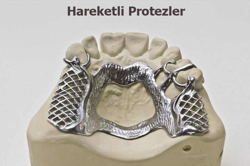 total-protez-1